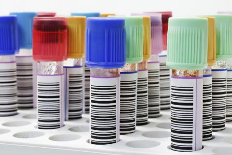 Cómo interpretar los resultados del análisis de sangre